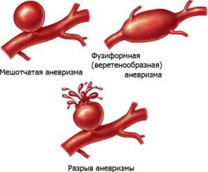 Атеросклероз почек