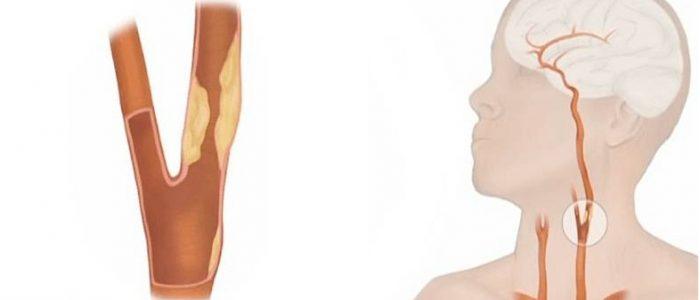 Признаки нестенозирующего атеросклероза брахиоцефальных артерий на экстракраниальном уровне