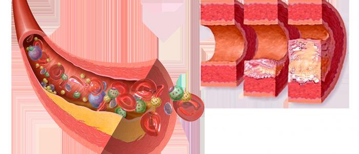Атеросклеротическое стенозирующее поражение артерий нижних конечностей
