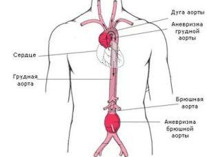 Атеросклероз грудной отдела аорты и коронарных артерий