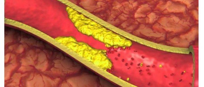 Атеросклероз бца что это такое лечение