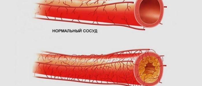 Пониженное давление при атеросклерозе