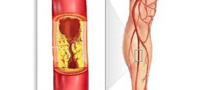 Удаление нижних конечностей при атеросклерозе