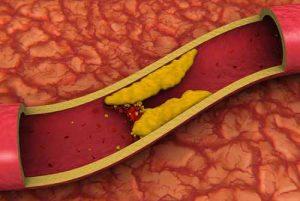 Атеросклероз аорты и клапанных структур сердца