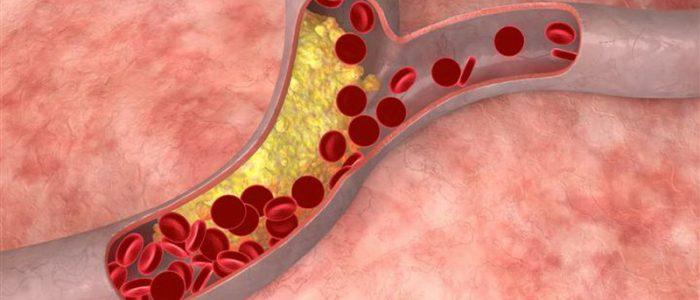 Как обозначается уровень холестерина в анализе крови