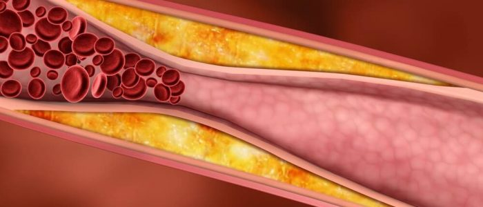 Холестерин в норме у женщин сколько