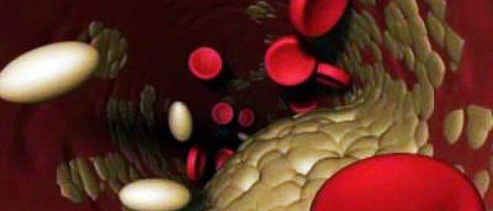 Если холестерин 9 что делать рекомендации врачей