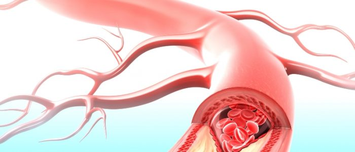Атеросклероз артерий коронарных, конечностей, позвоночных и его лечение