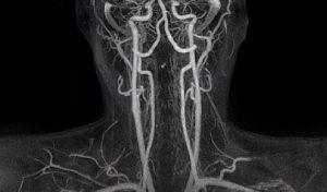 Атеросклероз сосудов шеи симптомы лечение