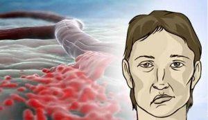 Как диагностируют атеросклероз аорты thumbnail