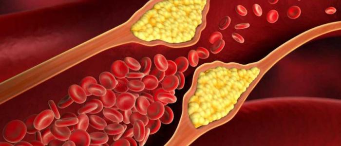Атеросклероз сосудов при диабете