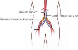 Операция на сосудах ног