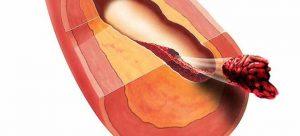 Операция штаны при атеросклерозе thumbnail
