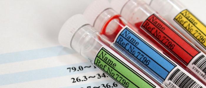 Анализ крови на холестерин показатели