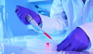 Анализ крови на холестирин