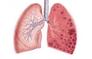 Кардиосклероз что это такое и как лечить