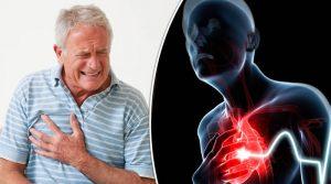 Почему низкий холестерин у мужчин